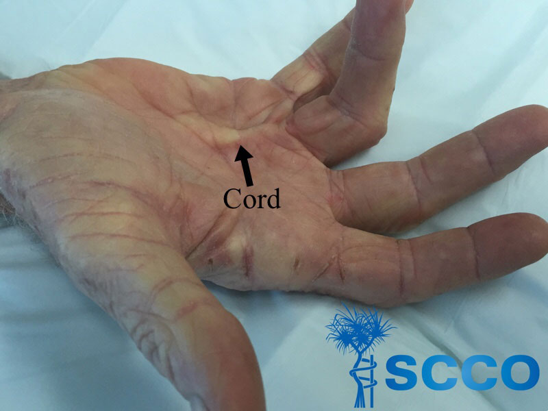 Dupuytrens Contracture